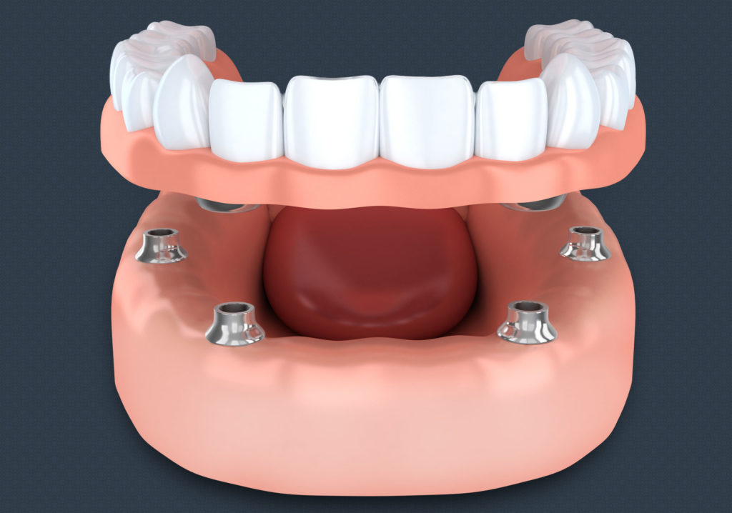 Implant Supported Dentures, Dentistry at Consilium, procedure image, Scarborough, ON