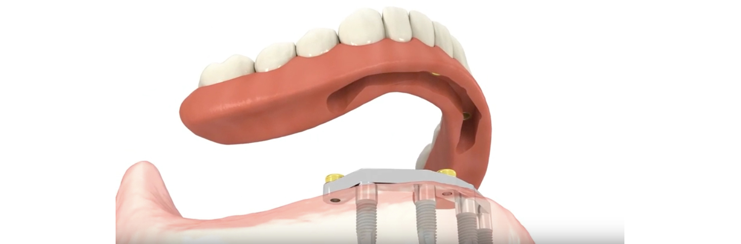 Implant Supported Dentures, Dentistry at Consilium, Scarborough, ON