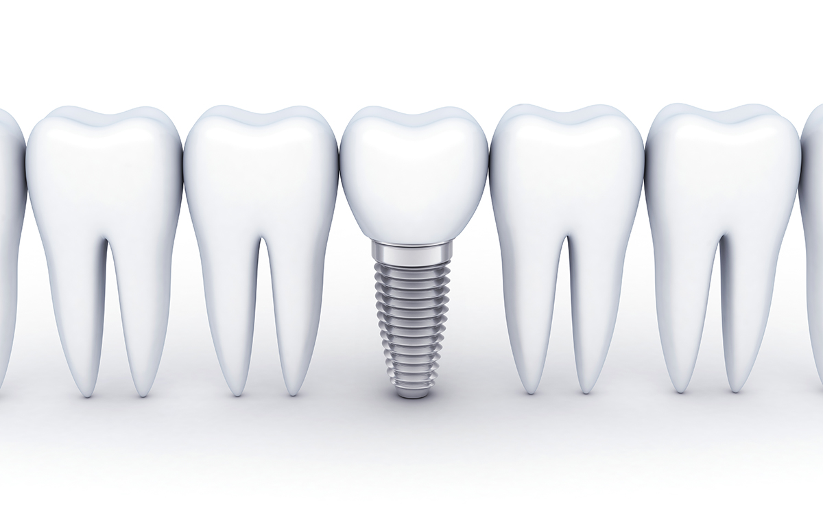 Dental Implant Process - Scarborough, ON