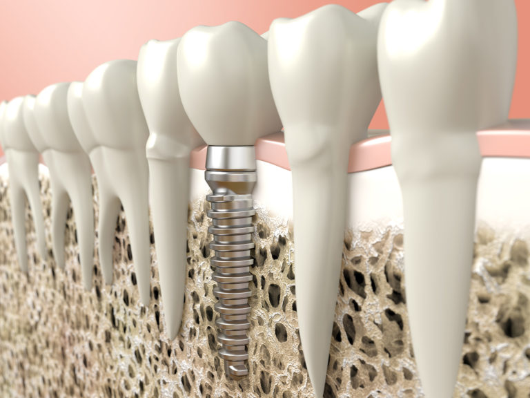 Bone Grafting, Dentistry at Consilium, hero image, Scarborough, ON