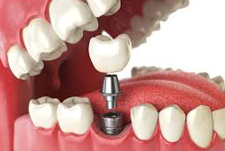 Dental Implants, Scarborough, ON