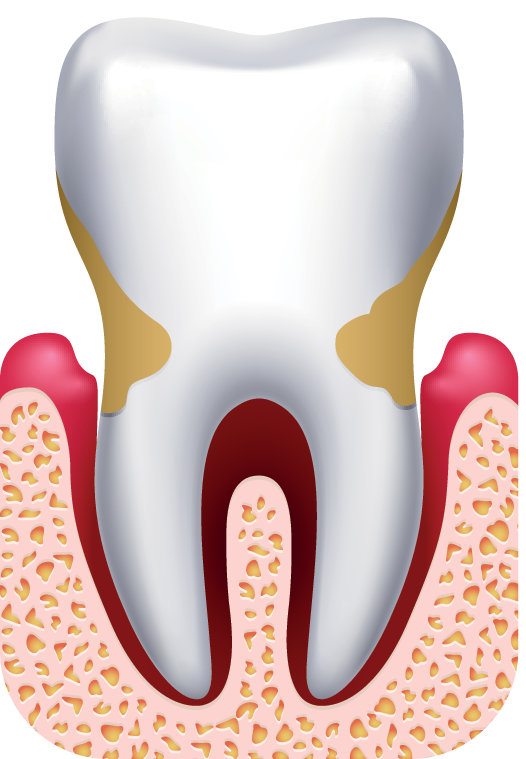 Gum Disease Treatment - Scarborough, ON - Dentist